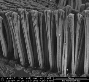 Electron microscope image of setae