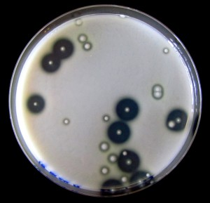 Pseudomonas aeruginosa colonies on skim milk agar. The protease-producing wild-type strain has large 'halos' where casein proteins have been broken down.